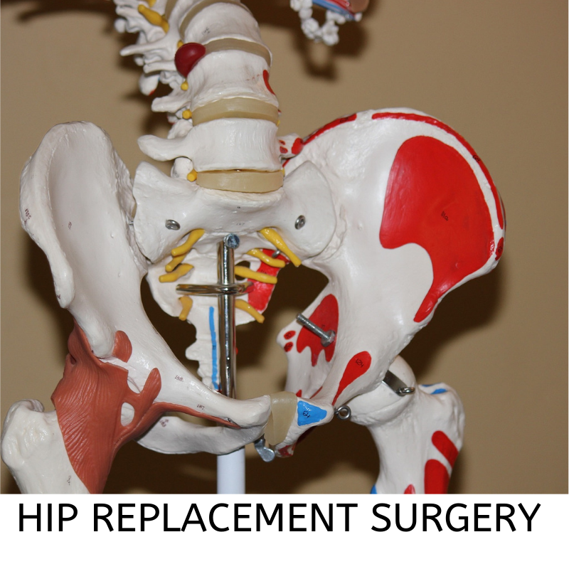 Hip replacement surgery through SurgeryXchange